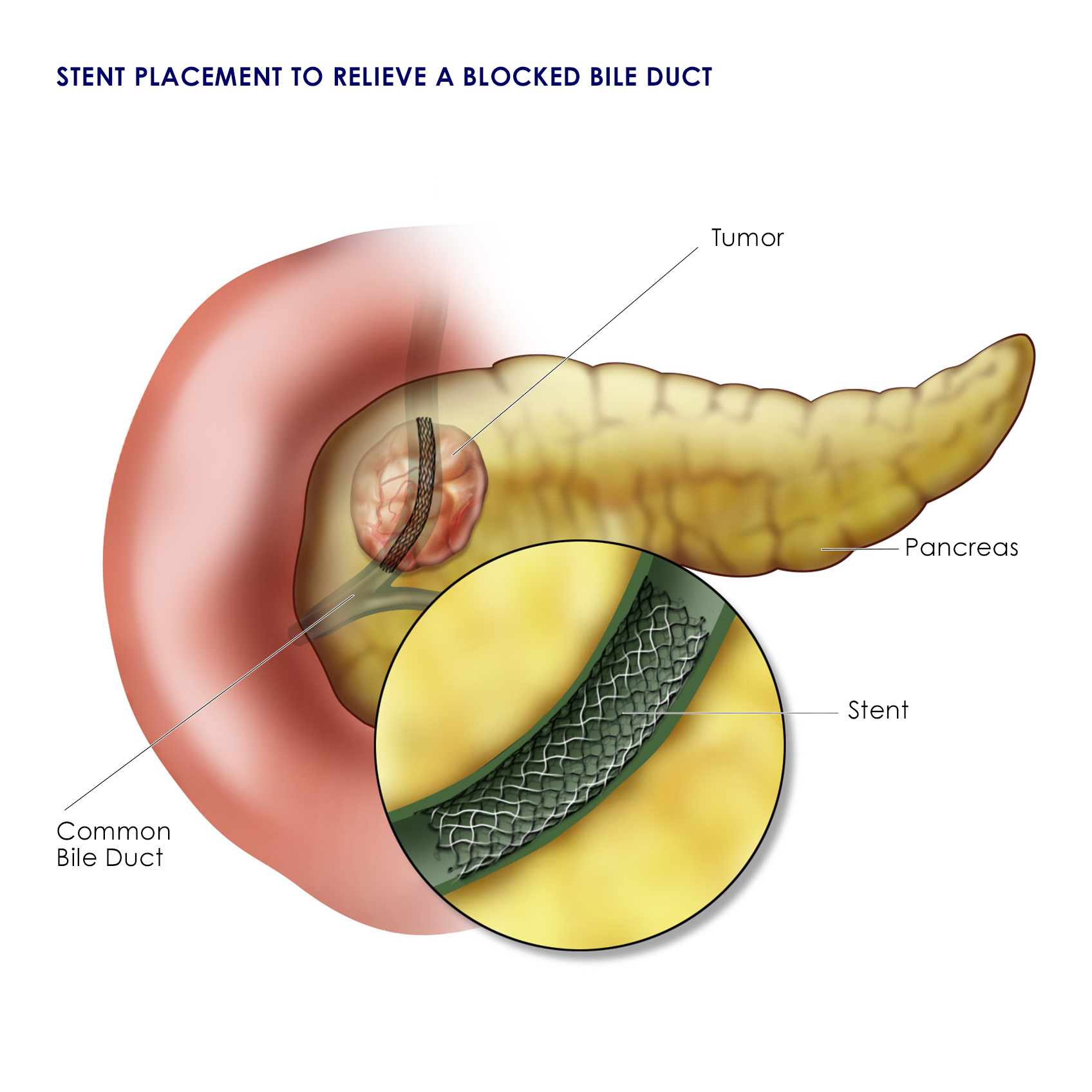 diagram of stent added to bile duct